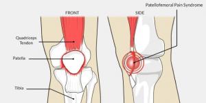 Patellofemoral Knee Pain